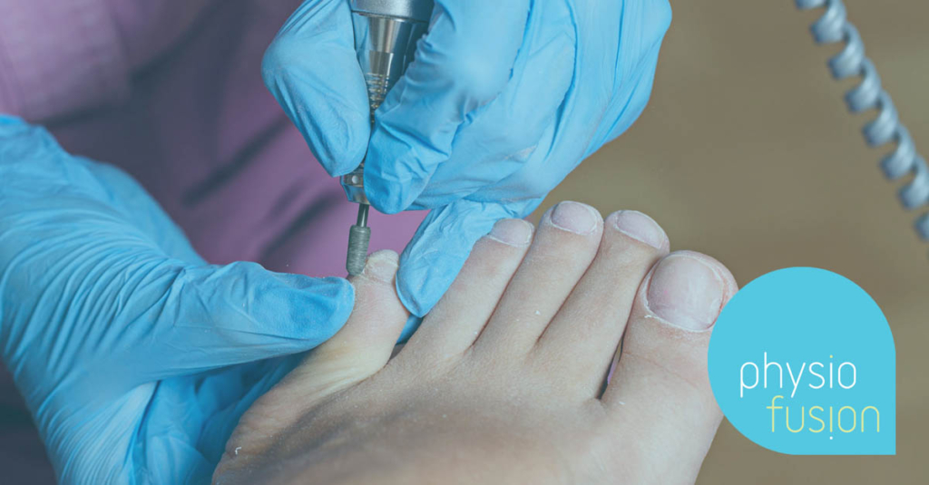 Nail Surgery for ingrowing toenail